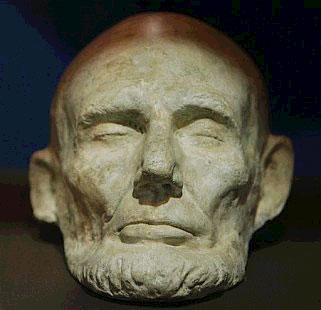 A life mask of President Lincoln shows a large degree of asymmetry in his face.""